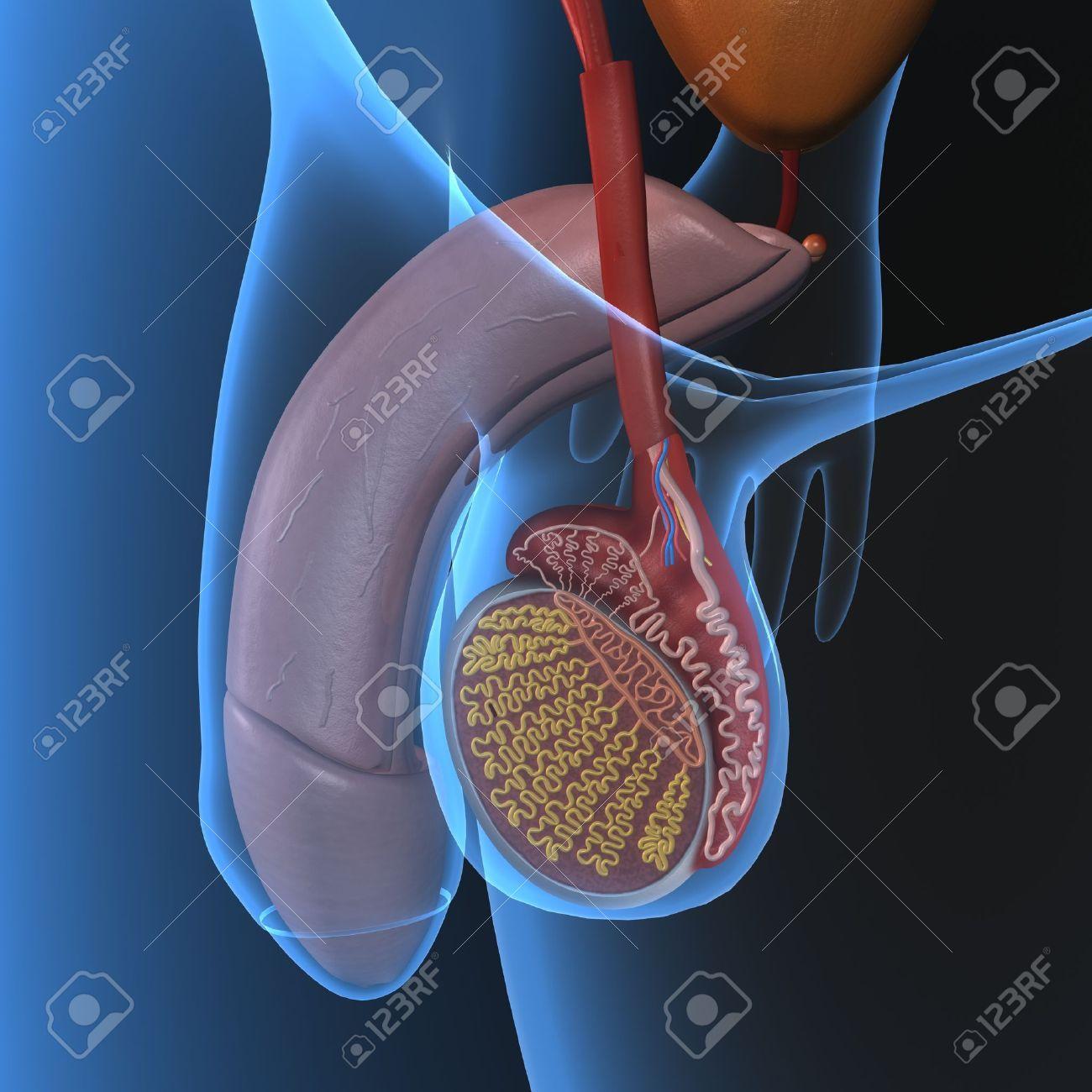 prótesis de próstata