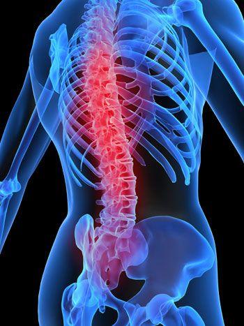 Tratamiento quirúrgico de las fracturas por estallamiento de columna ...